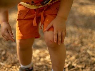 Το 80% των σοβαρών παιδικών ατυχημάτων συμβαίνουν μέσα στο σπίτι.