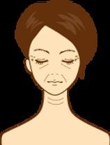 プラセンタ 老化肌 改善 イラスト