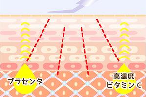 プラセンタ ビタミンC誘導体を超音波導入 イメージ図 コピー禁止 Maitrii