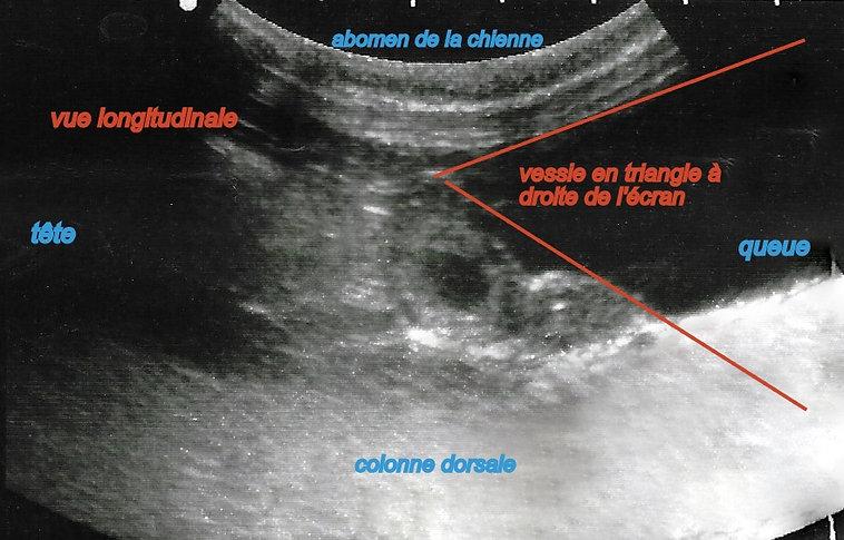 vessie vue longitudinale.jpg