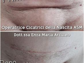 La storia della Cicatrice da Isterectomia di  Mamma M.