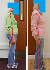 Before & after posture photos