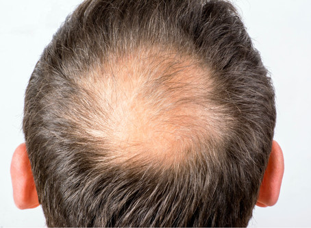 Male pattern baldness and hair growth advice for men from a trichologist