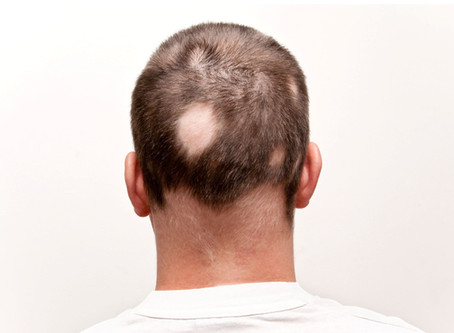 Alopecia areata: Diagnosis and treatments