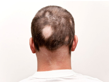Alopecia areata: Diagnosis and treatments