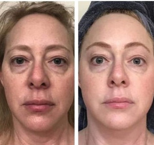 Dr. Jody Harper - 30 day Collagen Elixir Results