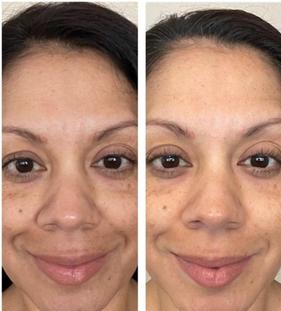 Karen's 30-day results