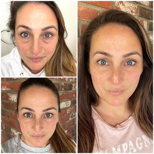 Kim - Collagen Elixir Results