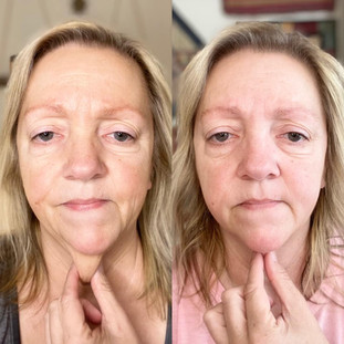Stacy - 60 Day Collagen Elixir Results