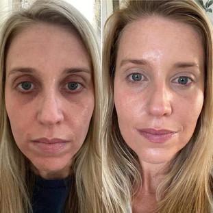 Renee - Collagen Elixir Results