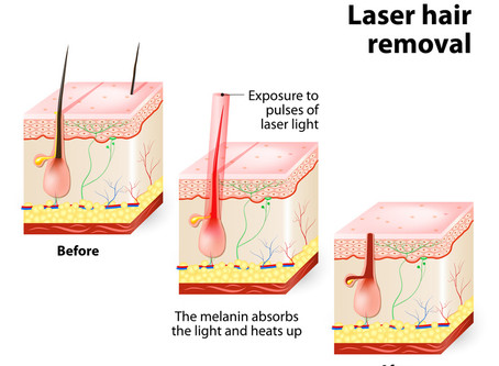 Laser Hair Removal: Myths to Kick to the Curb