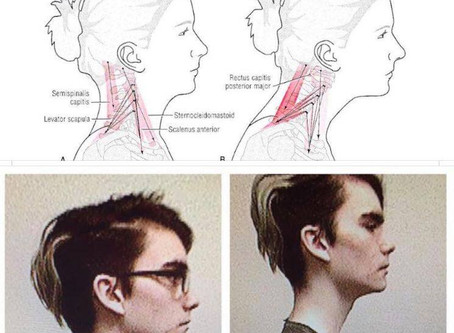 What does Posture have to do with Breathing?