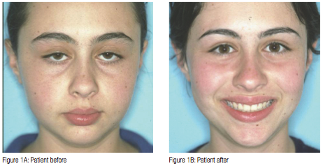 The Effects of Enlarged Adenoids on Developing a Malocclusion