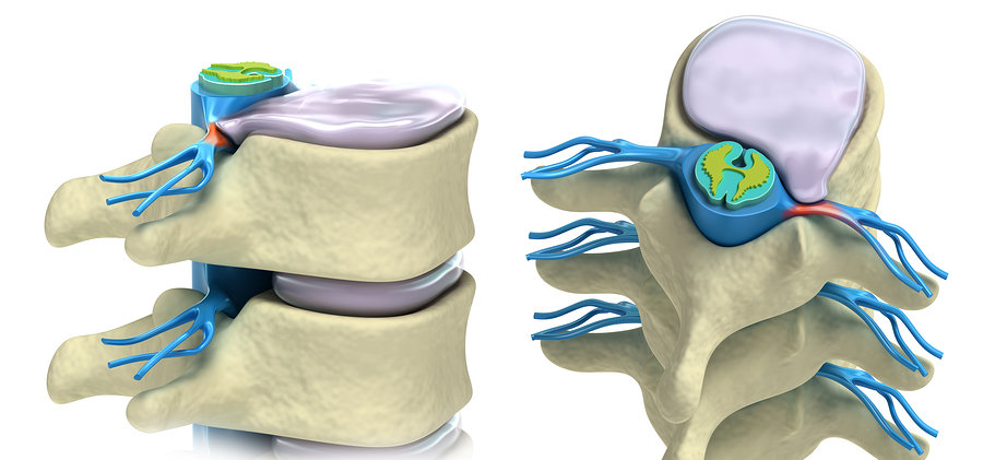 Prolapsed Disc Spinal Physio.jpg