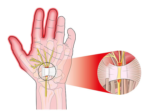 Spinal Physio Carpal Tunnel Syndrome.jpg