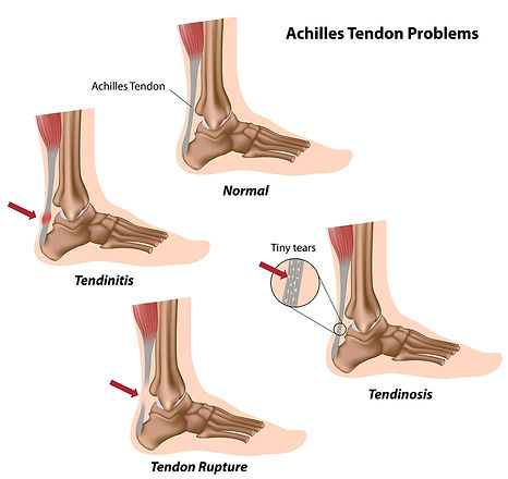 Spinal Physio Cambridge-Achilles-tendon-problems.jpg