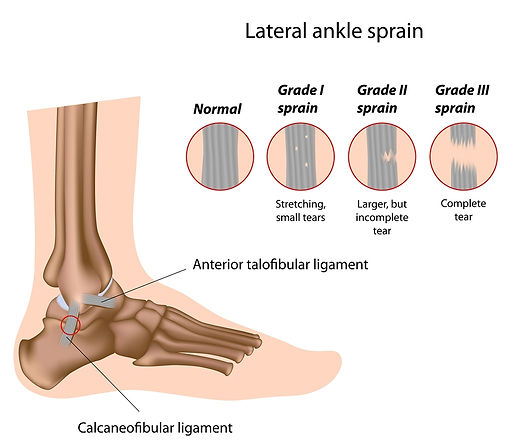 Spinal Physio Cambridge-Ankle-sprain-grades-.jpg