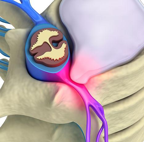 Sciatica Spinal Physio.jpg
