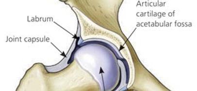 Spinal Physio Femeroacetabular impingement.jpg