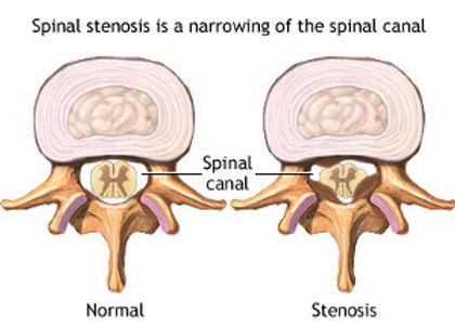spinal-stenosis-spinal physio.jpg