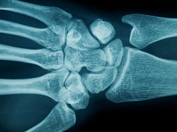 Spinal Physio Wrist Arthritis.jpg