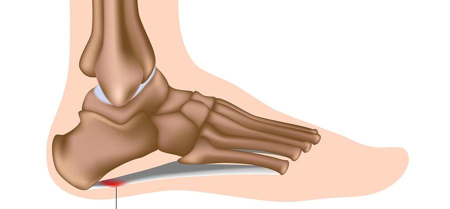 Spinal Physio Plantarfascitis.jpg