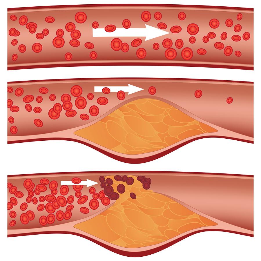 Representación esquemática de la formación de placa en la arterosclerosis