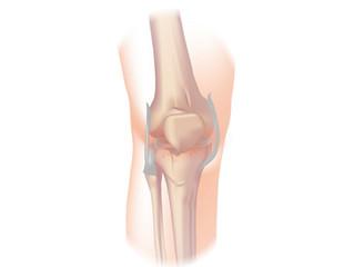 Helping you manage Osteoarthritis