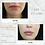 Thumbnail: 0.5 SYRINGE OF RESTYLANE KYSSE ® LIP FILLER