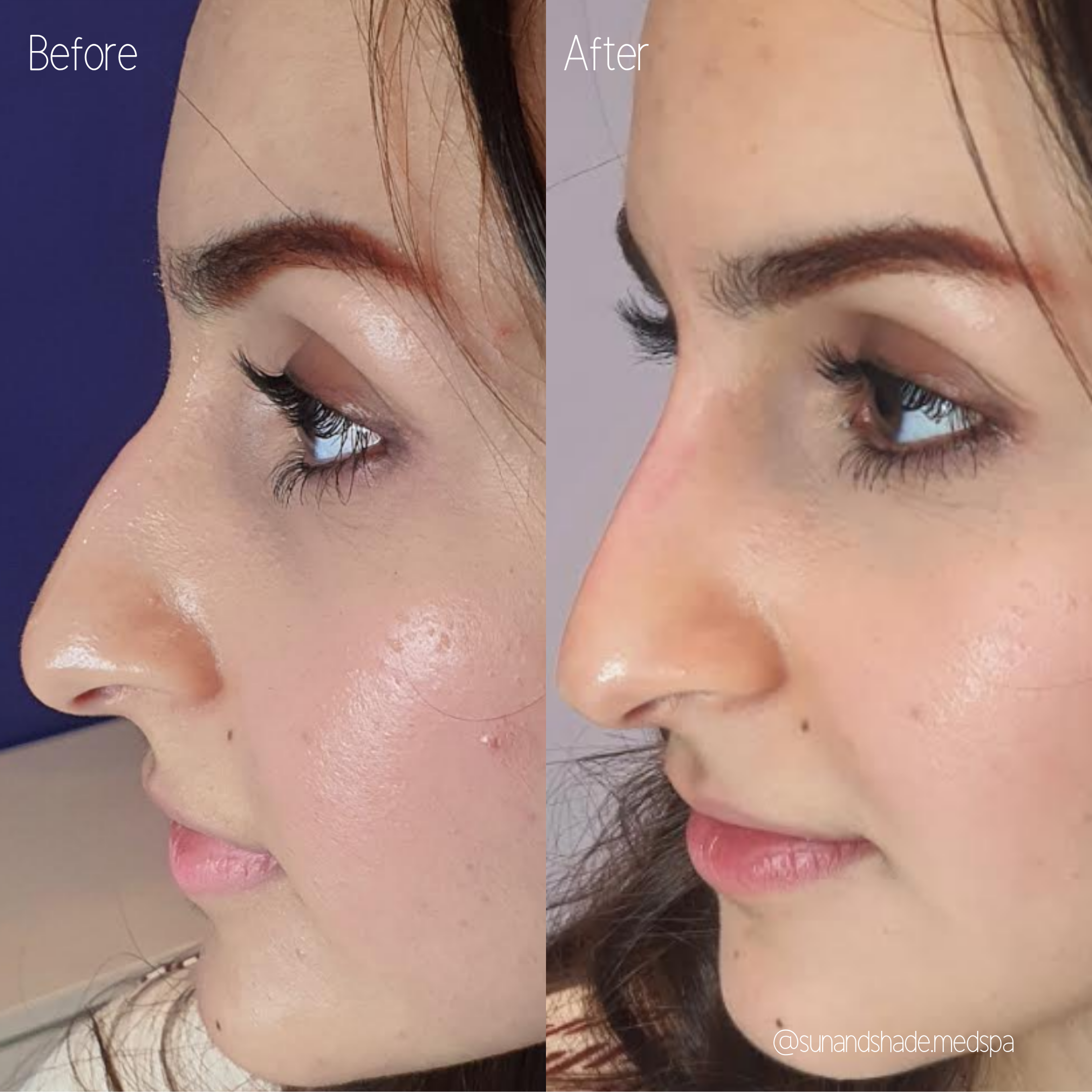 Nose Filler - 0.5 ml