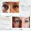 Thumbnail: 0.5 SYRINGE OF RESTYLANE LYFT ® FILLER
