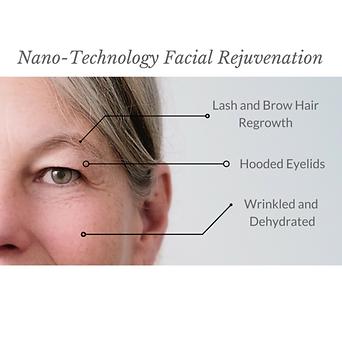 Nano-Technology_Facial_Rejuvenation-2_la