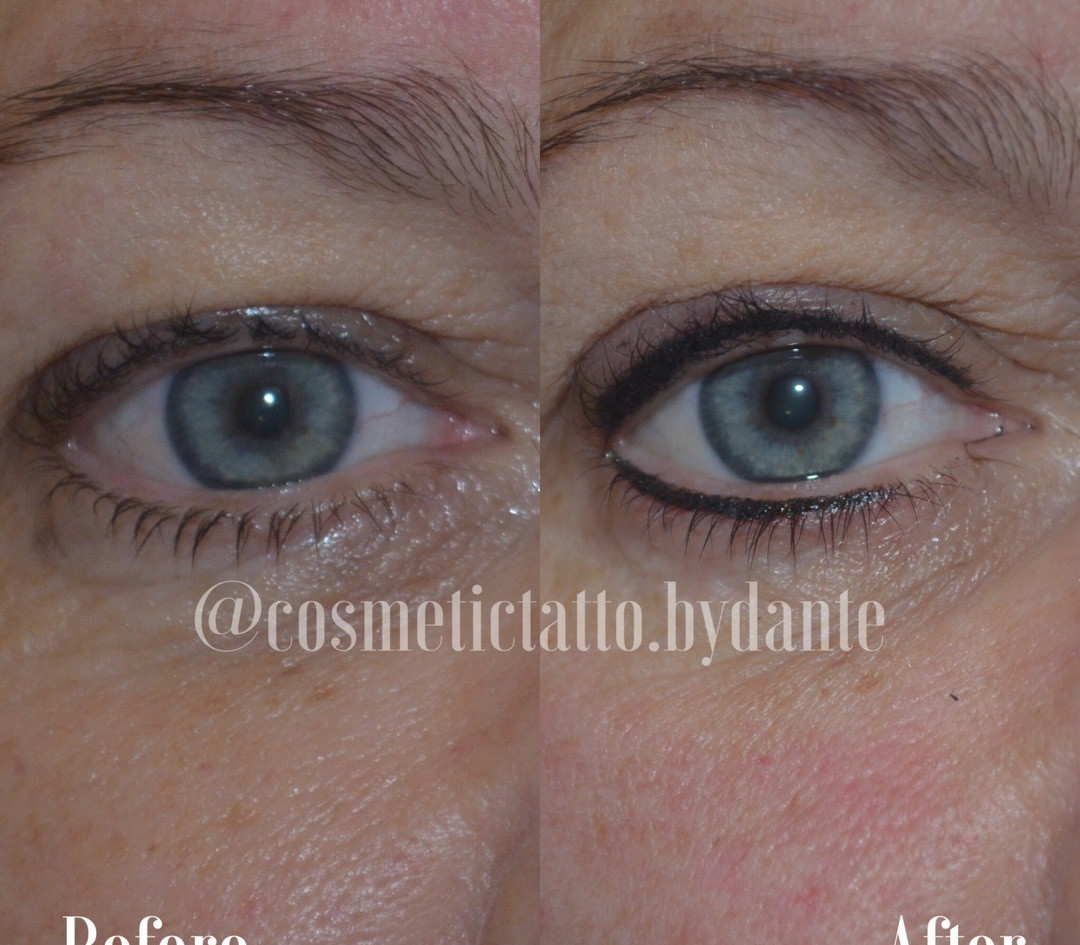 Top and Bottom Liner - immediately after treatment
