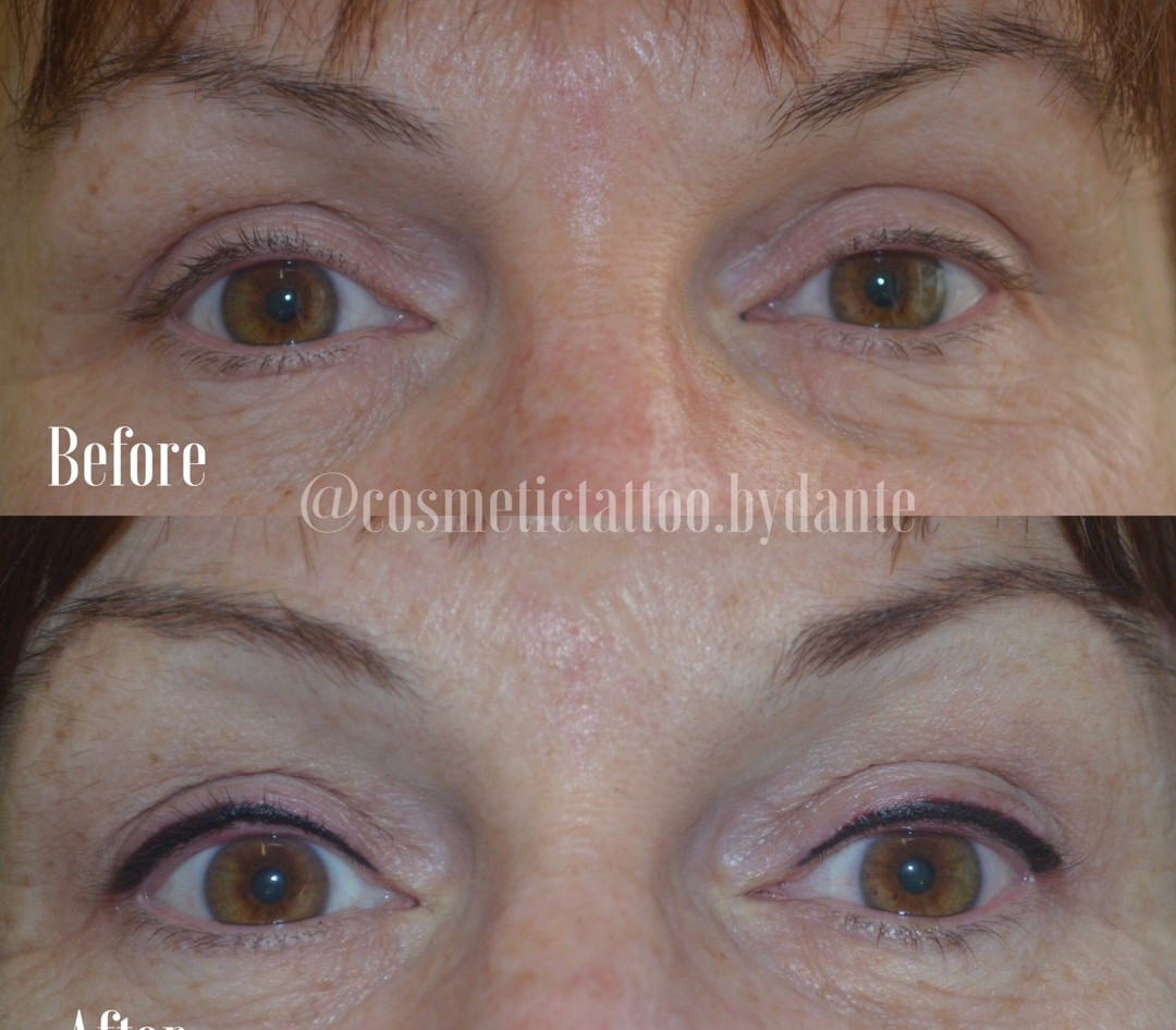 Top Liner - immediately after treatment