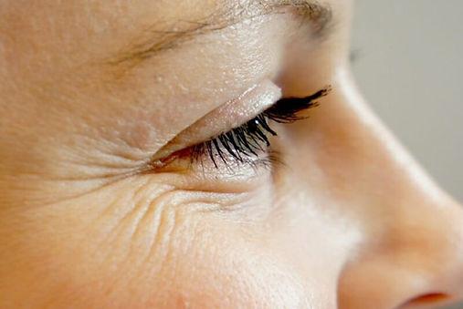 fine-lines-and-wrinkles-1.jpg