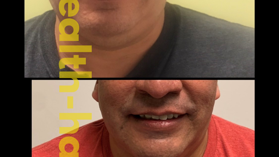 NonSurgical FaceLift