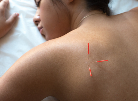 Little List: ACUPUNCTURE
