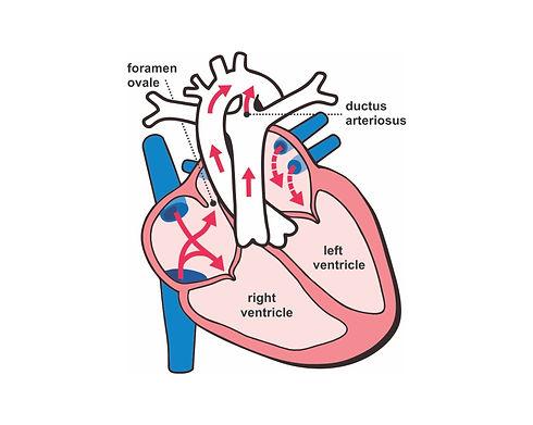 Fetal heart 3.jpg