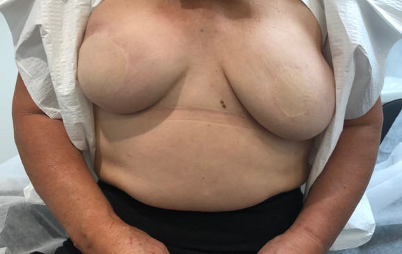 Double Mastectomy