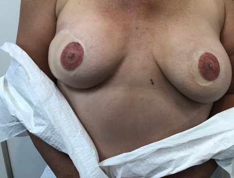 Freshly Tattooed Areolas + Nipples