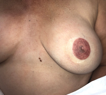 Close Up Fresh Areola and Nipple Tattoo