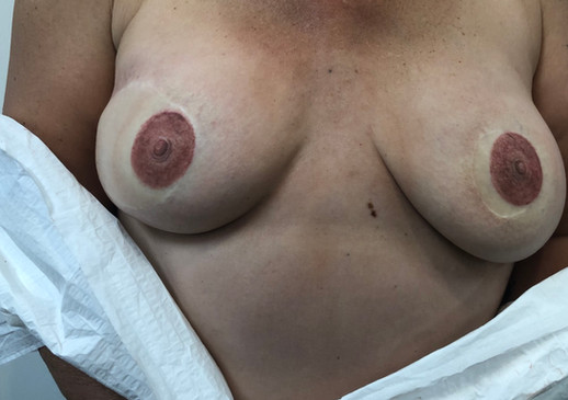 Freshly Tattooed Areola Restorative Tattoo