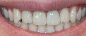 patient teeth after