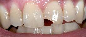 patient teeth before