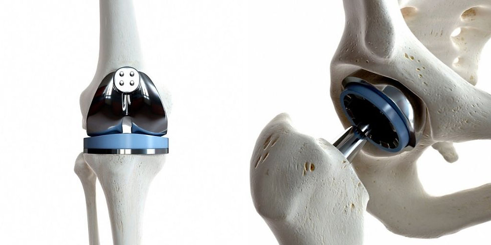 Hip and Knee Replacement Dorset.jpg