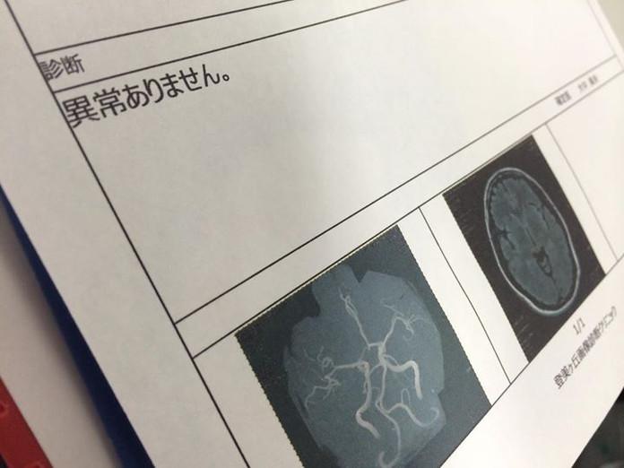 So, I had an MRI