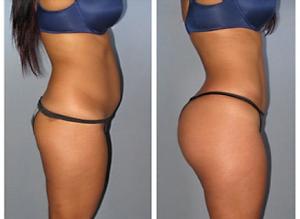 Stomach - Sides - Back