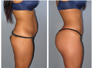 Brazilian Butt Lift & Stomach