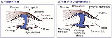 Degenerative Joint Disease/ Osteoarthritis in Dogs