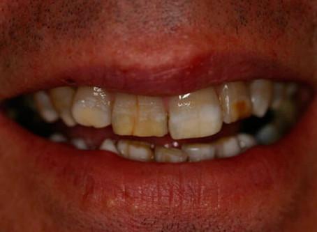 Самостоятельное отбеливание наносит вред зубам.